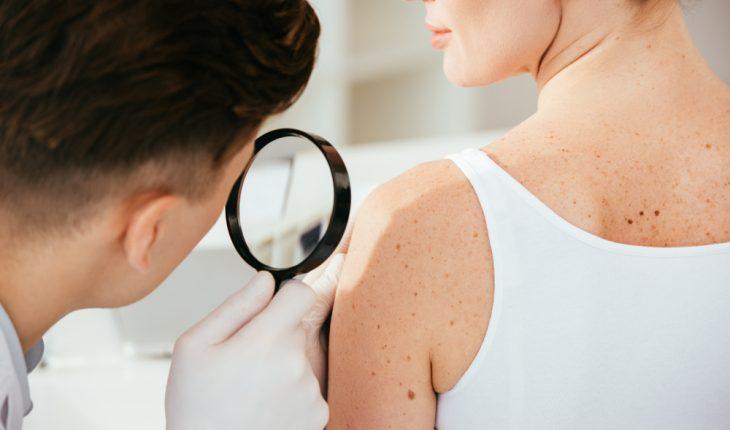 dermatolog bielsko