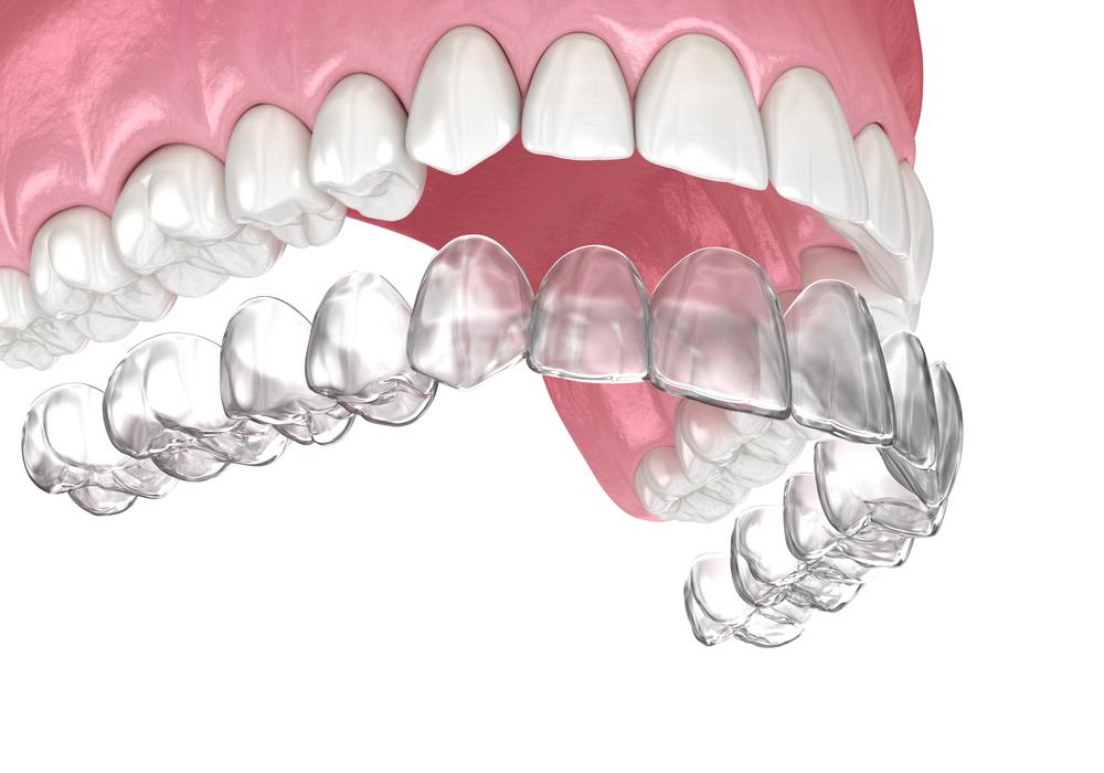 Ortodonta bielsko leczenie nakładkami